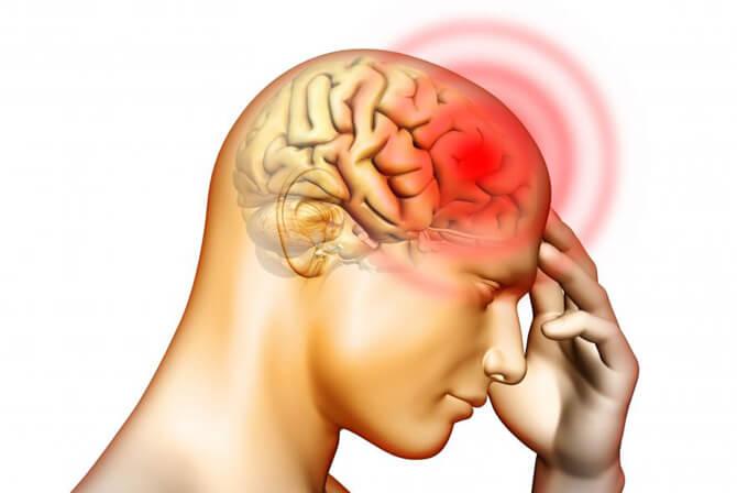 кратковременные головные боли